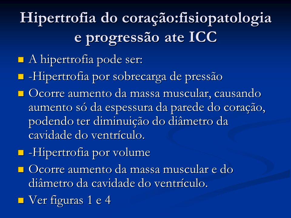 Hipertrofia do coração:fisiopatologia e progressão ate ICC A hipertrofia pode ser: A hipertrofia pode ser: -Hipertrofia por sobrecarga de pressão -Hip