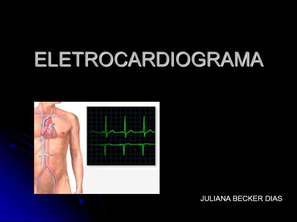 Conceito É o registro extracelular das variações do potencial elétrico do músculo cardíaco em atividade É o registro extracelular das variações do potencial elétrico do músculo cardíaco em atividade Impulso elétrico passa pelo coração corrente elétrica se propaga para tecidos adjacentes que circundam o coração Impulso elétrico passa pelo coração corrente elétrica se propaga para tecidos adjacentes que circundam o coração Eletrodos colocados na pele em lados opostos do coração registro dos potenciais elétricos gerados pela corrente Eletrodos colocados na pele em lados opostos do coração registro dos potenciais elétricos gerados pela corrente 5 eletrodos: um em cada punho, um em cada tornozelo e um móvel na superfície torácica em 6 posições diferentes 5 eletrodos: um em cada punho, um em cada tornozelo e um móvel na superfície torácica em 6 posições diferentes