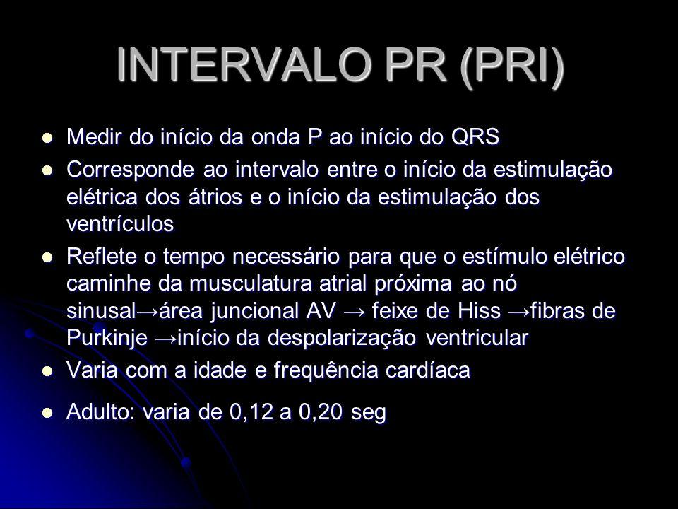 INTERVALO PR (PRI) Medir do início da onda P ao início do QRS Medir do início da onda P ao início do QRS Corresponde ao intervalo entre o início da es