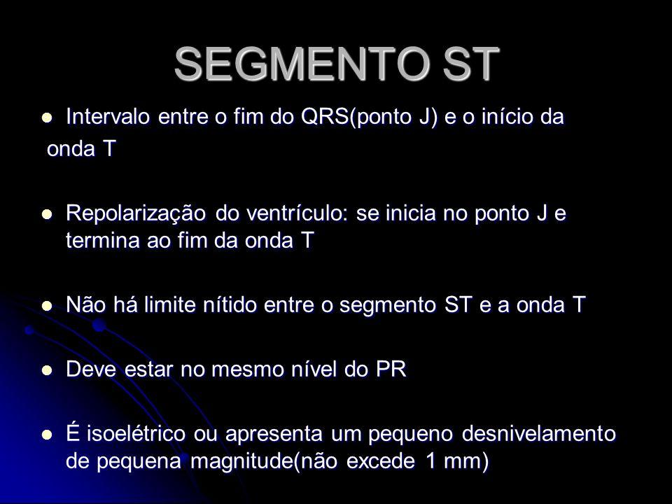 SEGMENTO ST Intervalo entre o fim do QRS(ponto J) e o início da Intervalo entre o fim do QRS(ponto J) e o início da onda T onda T Repolarização do ven