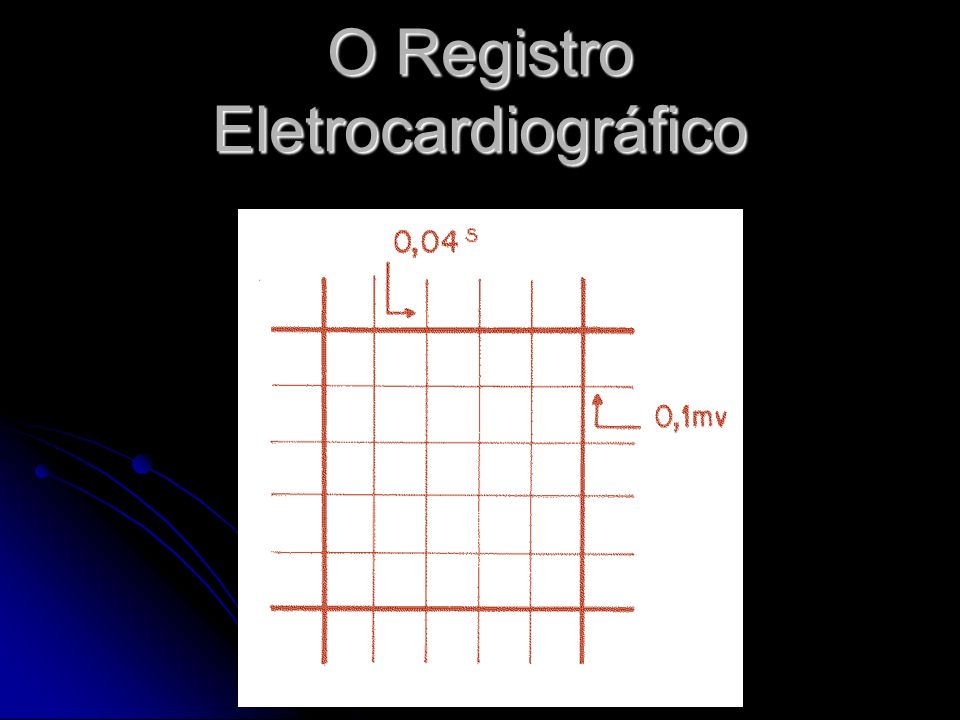 Registrado sobre uma tira de papel quadriculado: Registrado sobre uma tira de papel quadriculado: 1.