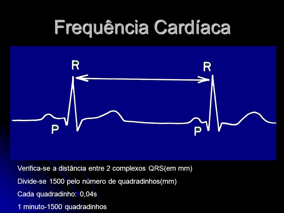 Frequência Cardíaca Verifica-se a distância entre 2 complexos QRS(em mm) Divide-se 1500 pelo número de quadradinhos(mm) Cada quadradinho: 0,04s 1 minu