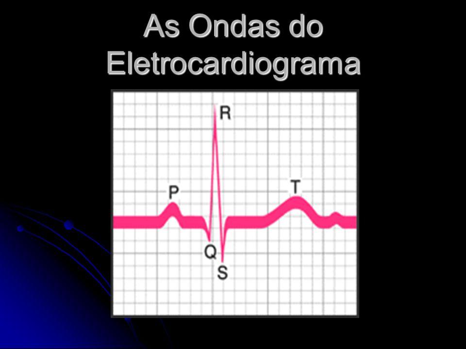 ONDA P Primeira onda registrada no ECG Primeira onda registrada no ECG Registra a despolarização dos átrios Registra a despolarização dos átrios Representa a atividade elétrica do coração que produz a contração dos átrios Representa a atividade elétrica do coração que produz a contração dos átrios Arredondada,simétrica,de pequena amplitude (menor que 2,5mm) Arredondada,simétrica,de pequena amplitude (menor que 2,5mm) Deve ser seguida pelo QRS relação atrio-ventricular 1:1 Deve ser seguida pelo QRS relação atrio-ventricular 1:1
