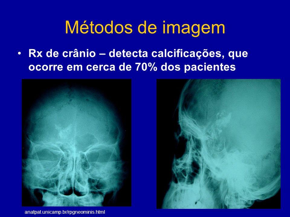 Métodos de imagem Rx de crânio – detecta calcificações, que ocorre em cerca de 70% dos pacientes anatpat.unicamp.br/rpgneominis.html