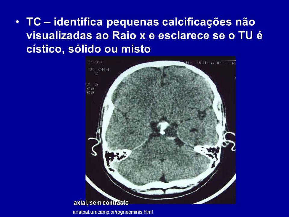 TC – identifica pequenas calcificações não visualizadas ao Raio x e esclarece se o TU é cístico, sólido ou misto anatpat.unicamp.br/rpgneominis.html
