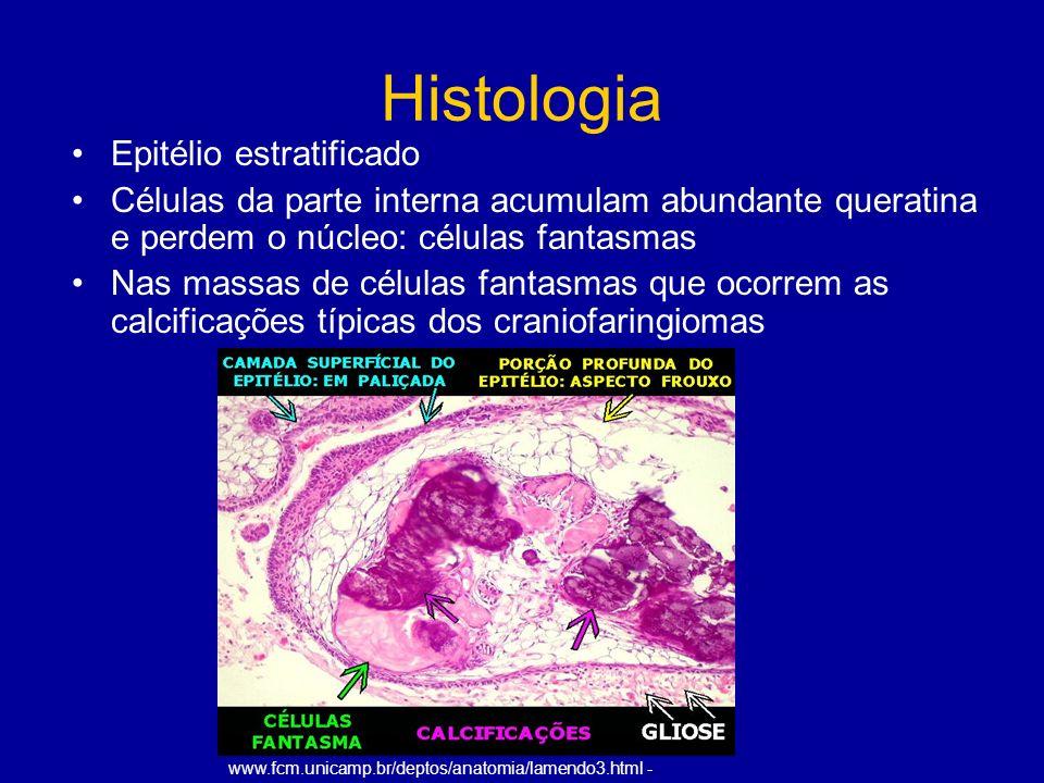 Histologia Epitélio estratificado Células da parte interna acumulam abundante queratina e perdem o núcleo: células fantasmas Nas massas de células fantasmas que ocorrem as calcificações típicas dos craniofaringiomas www.fcm.unicamp.br/deptos/anatomia/lamendo3.html -