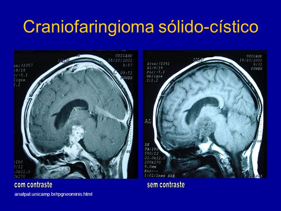 Craniofaringioma sólido-cístico anatpat.unicamp.br/rpgneominis.html