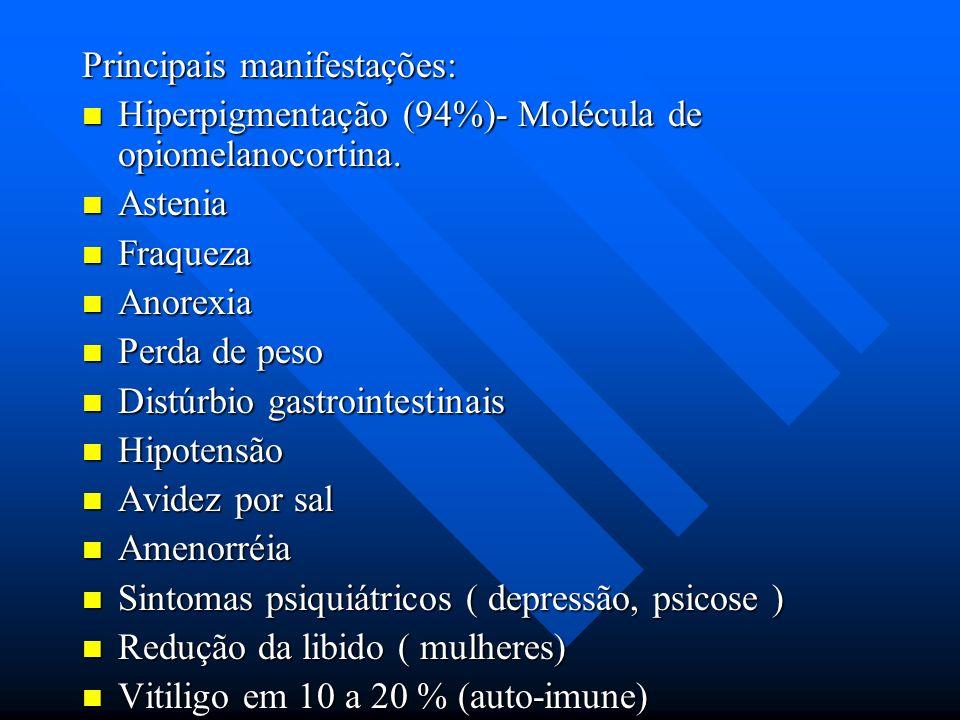 Principais manifestações: Hiperpigmentação (94%)- Molécula de opiomelanocortina. Hiperpigmentação (94%)- Molécula de opiomelanocortina. Astenia Asteni