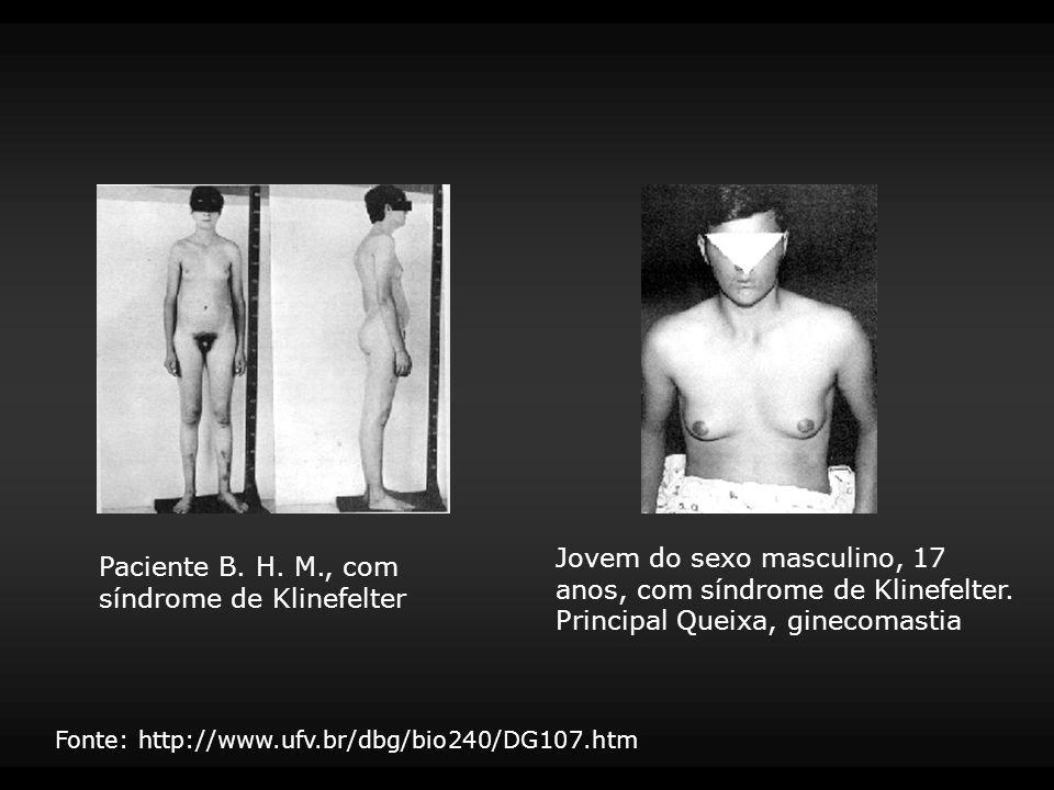Jovem do sexo masculino, 17 anos, com síndrome de Klinefelter. Principal Queixa, ginecomastia Paciente B. H. M., com síndrome de Klinefelter Fonte: ht