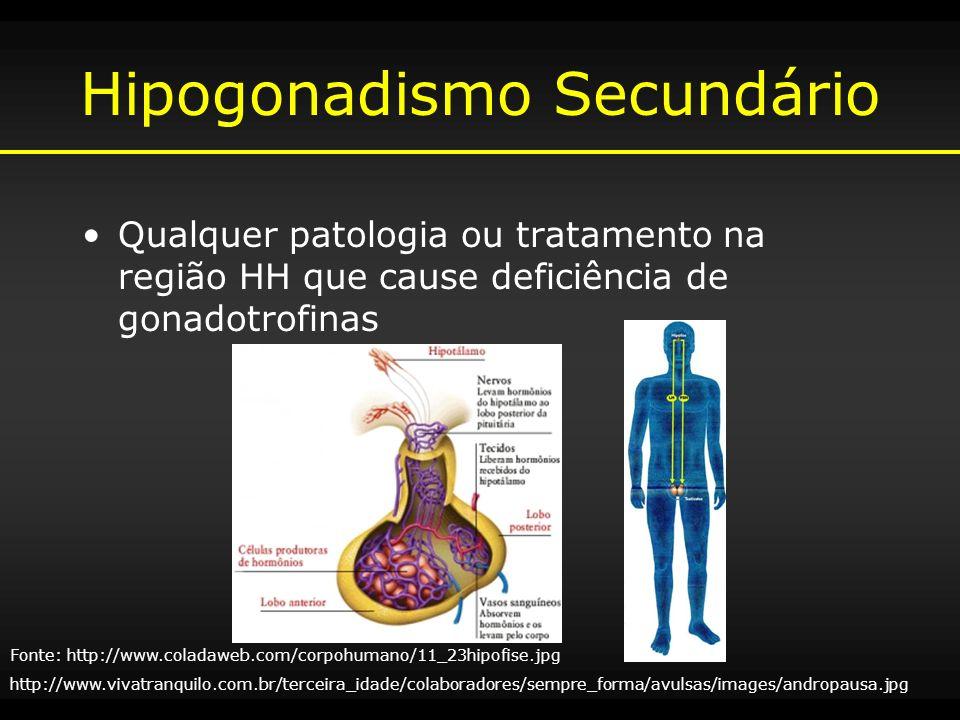 Hipogonadismo Secundário Qualquer patologia ou tratamento na região HH que cause deficiência de gonadotrofinas Fonte: http://www.coladaweb.com/corpohu
