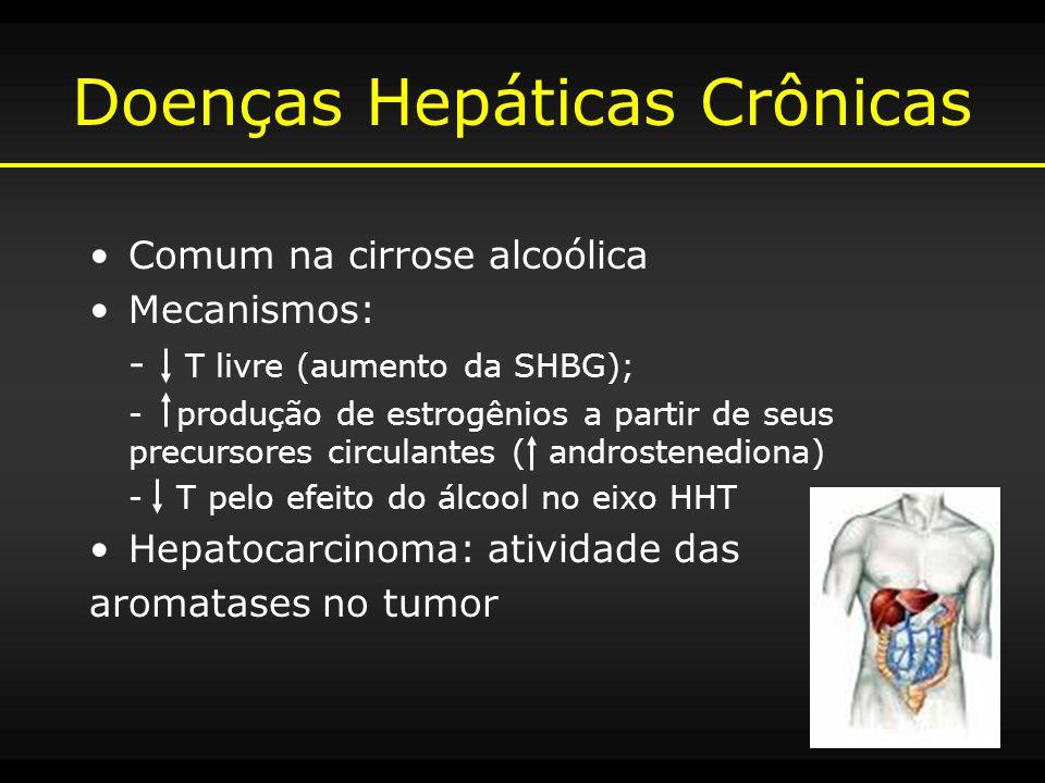Doenças Hepáticas Crônicas Comum na cirrose alcoólica Mecanismos: - T livre (aumento da SHBG); - produção de estrogênios a partir de seus precursores