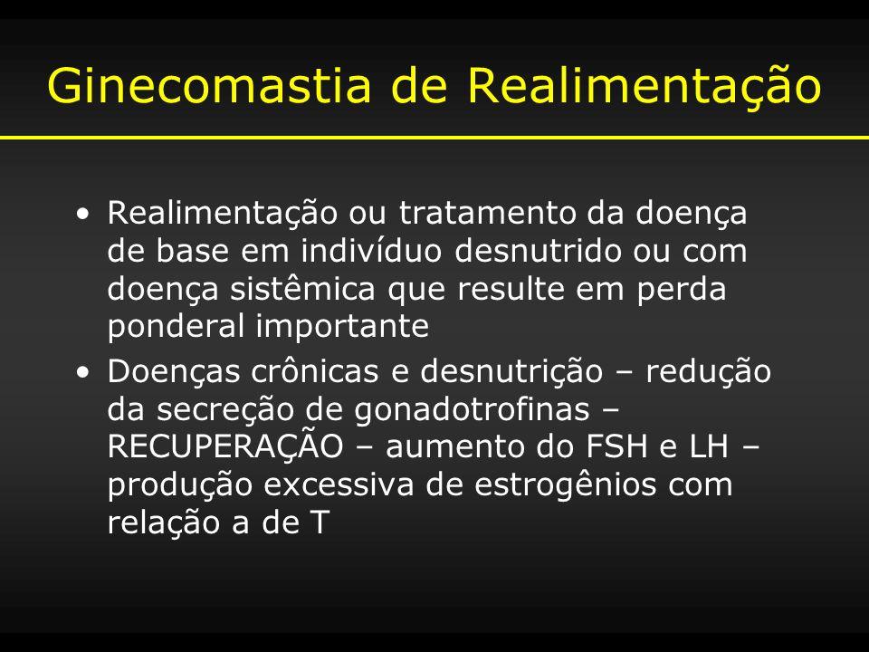 Ginecomastia de Realimentação Realimentação ou tratamento da doença de base em indivíduo desnutrido ou com doença sistêmica que resulte em perda ponde
