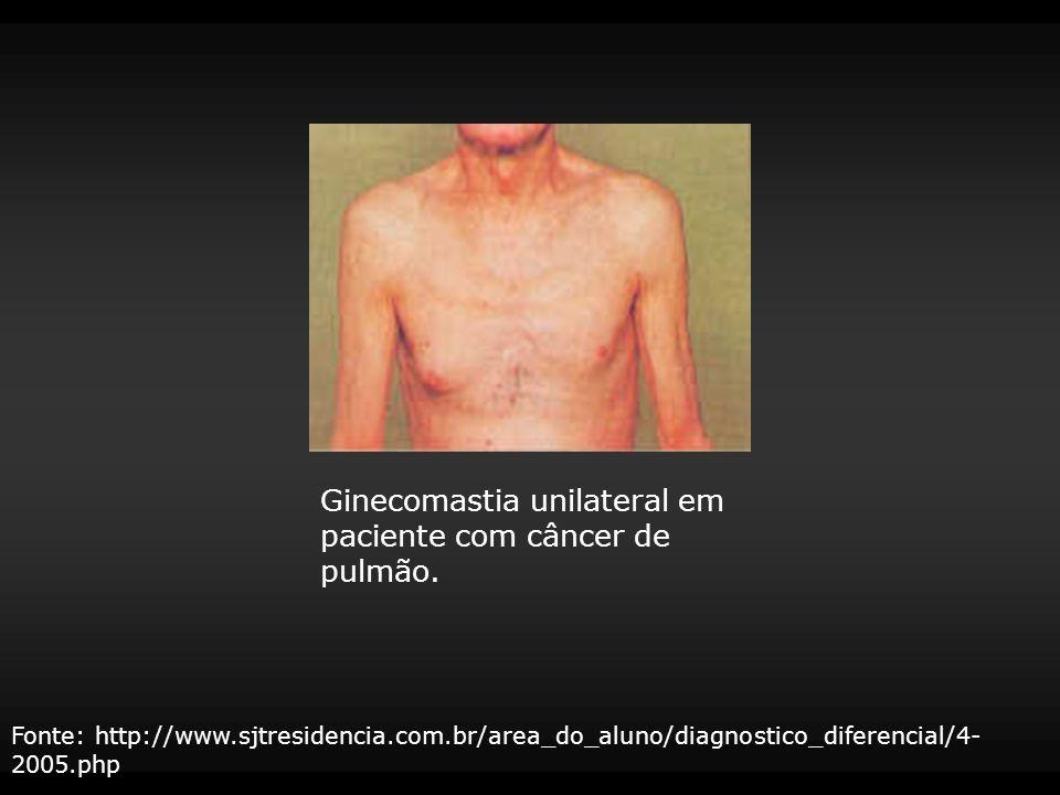 Ginecomastia unilateral em paciente com câncer de pulmão. Fonte: http://www.sjtresidencia.com.br/area_do_aluno/diagnostico_diferencial/4- 2005.php