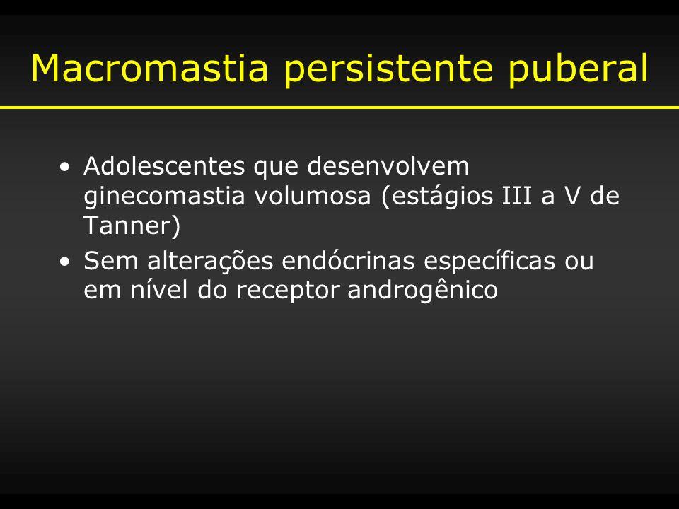 Macromastia persistente puberal Adolescentes que desenvolvem ginecomastia volumosa (estágios III a V de Tanner) Sem alterações endócrinas específicas