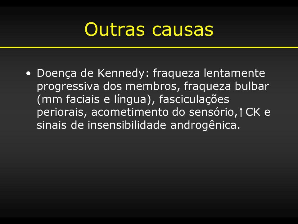 Outras causas Doença de Kennedy: fraqueza lentamente progressiva dos membros, fraqueza bulbar (mm faciais e língua), fasciculações periorais, acometim
