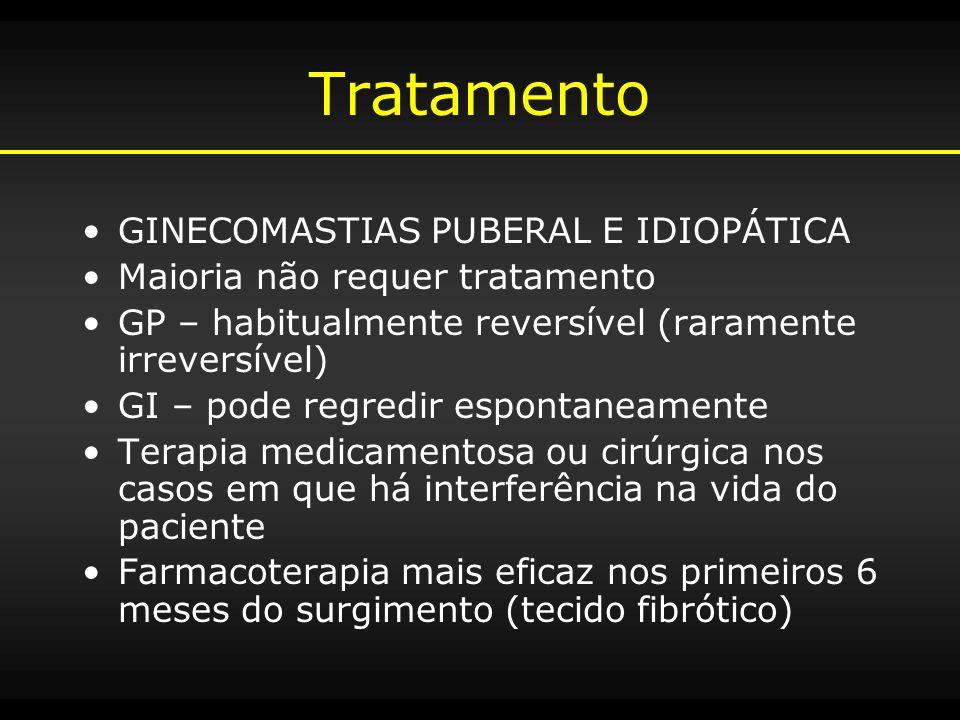 Tratamento GINECOMASTIAS PUBERAL E IDIOPÁTICA Maioria não requer tratamento GP – habitualmente reversível (raramente irreversível) GI – pode regredir