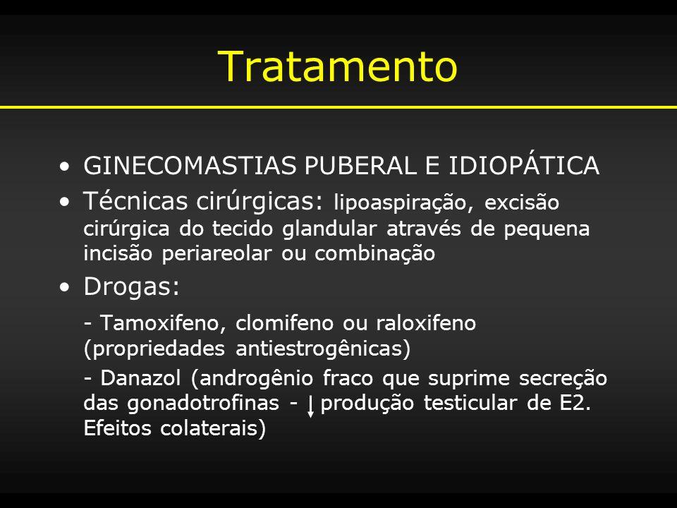 Tratamento GINECOMASTIAS PUBERAL E IDIOPÁTICA Técnicas cirúrgicas: lipoaspiração, excisão cirúrgica do tecido glandular através de pequena incisão per