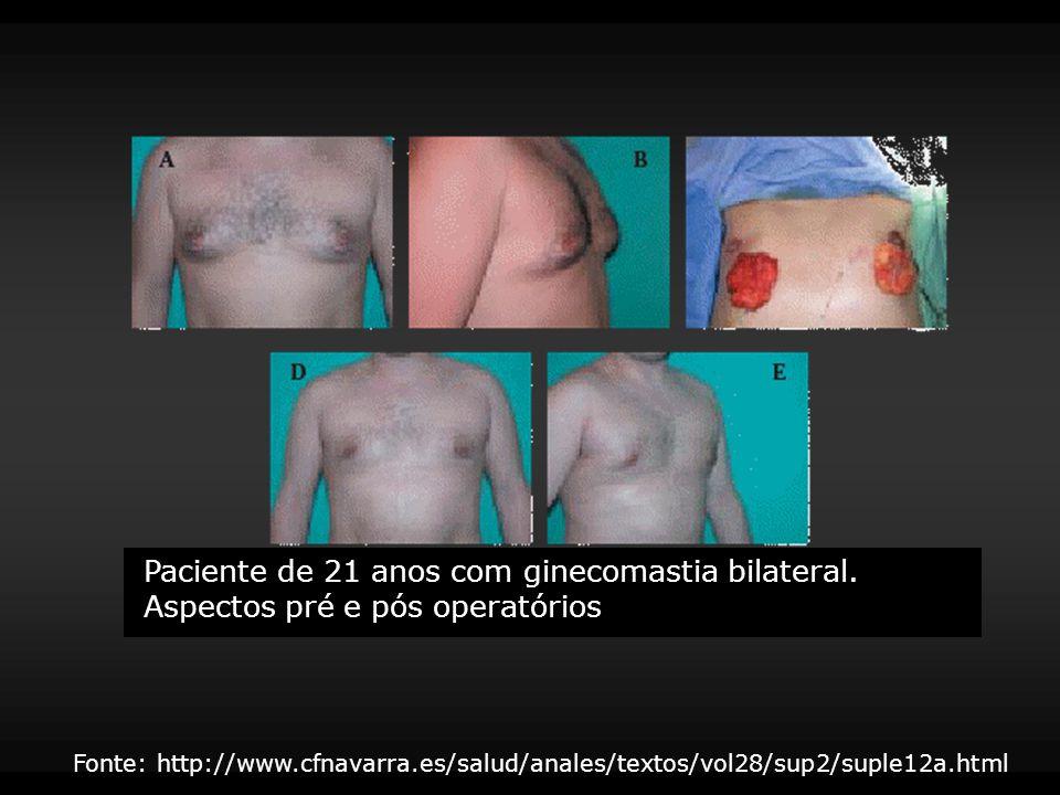 Paciente de 21 anos com ginecomastia bilateral. Aspectos pré e pós operatórios Fonte: http://www.cfnavarra.es/salud/anales/textos/vol28/sup2/suple12a.