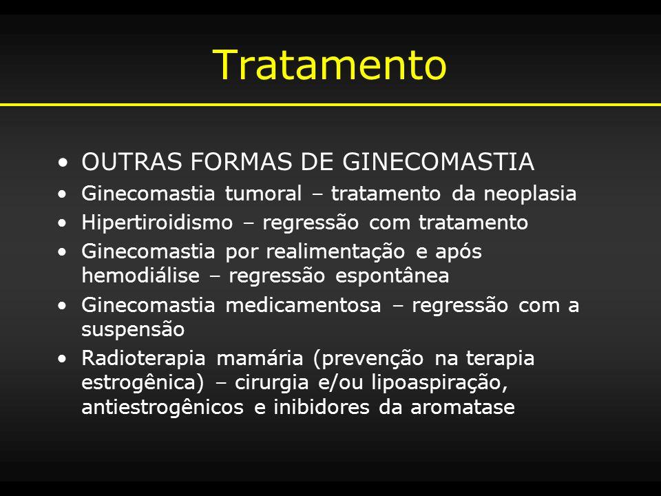 Tratamento OUTRAS FORMAS DE GINECOMASTIA Ginecomastia tumoral – tratamento da neoplasia Hipertiroidismo – regressão com tratamento Ginecomastia por re