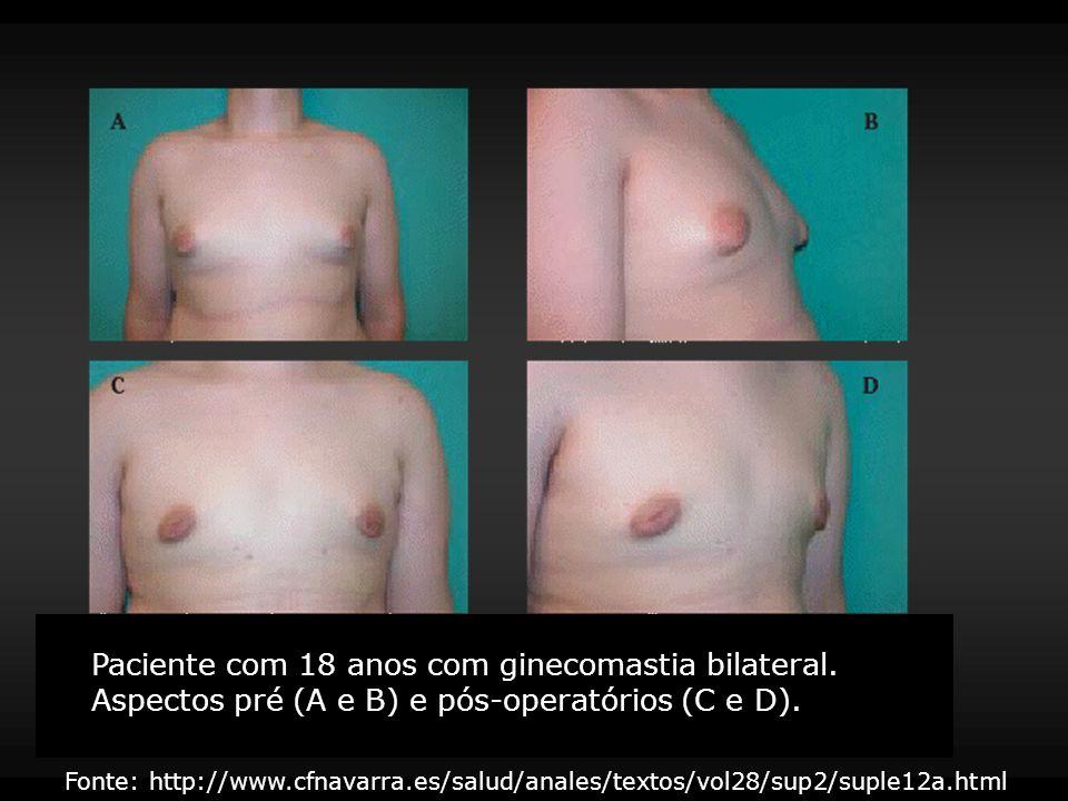 Tratamento OUTRAS FORMAS DE GINECOMASTIA Ginecomastia tumoral – tratamento da neoplasia Hipertiroidismo – regressão com tratamento Ginecomastia por realimentação e após hemodiálise – regressão espontânea Ginecomastia medicamentosa – regressão com a suspensão Radioterapia mamária (prevenção na terapia estrogênica) – cirurgia e/ou lipoaspiração, antiestrogênicos e inibidores da aromatase