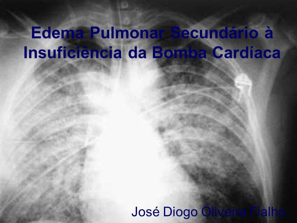 Edema Pulmonar Secundário à Insuficiência da Bomba Cardíaca José Diogo Oliveira Fialho