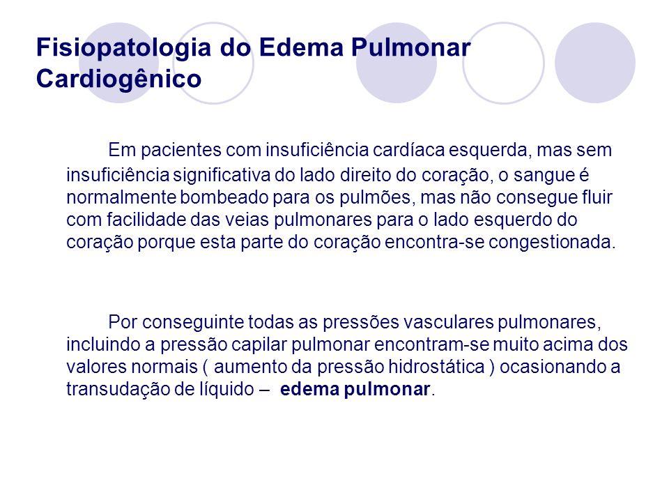 Fisiopatologia do Edema Pulmonar Cardiogênico Em pacientes com insuficiência cardíaca esquerda, mas sem insuficiência significativa do lado direito do