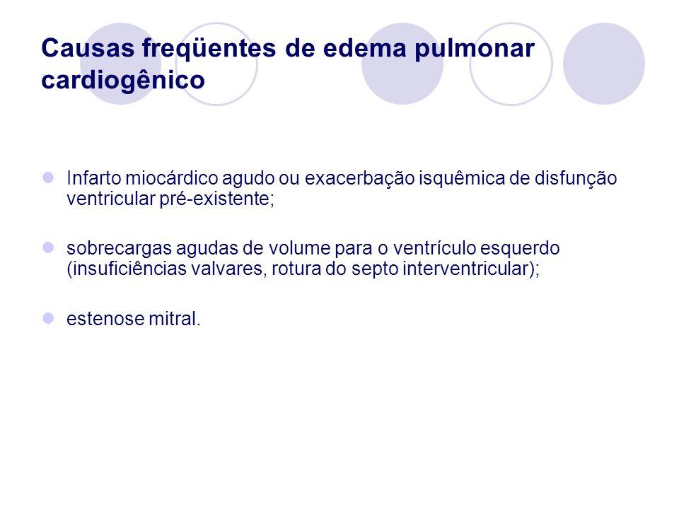 Causas freqüentes de edema pulmonar cardiogênico Infarto miocárdico agudo ou exacerbação isquêmica de disfunção ventricular pré-existente; sobrecargas