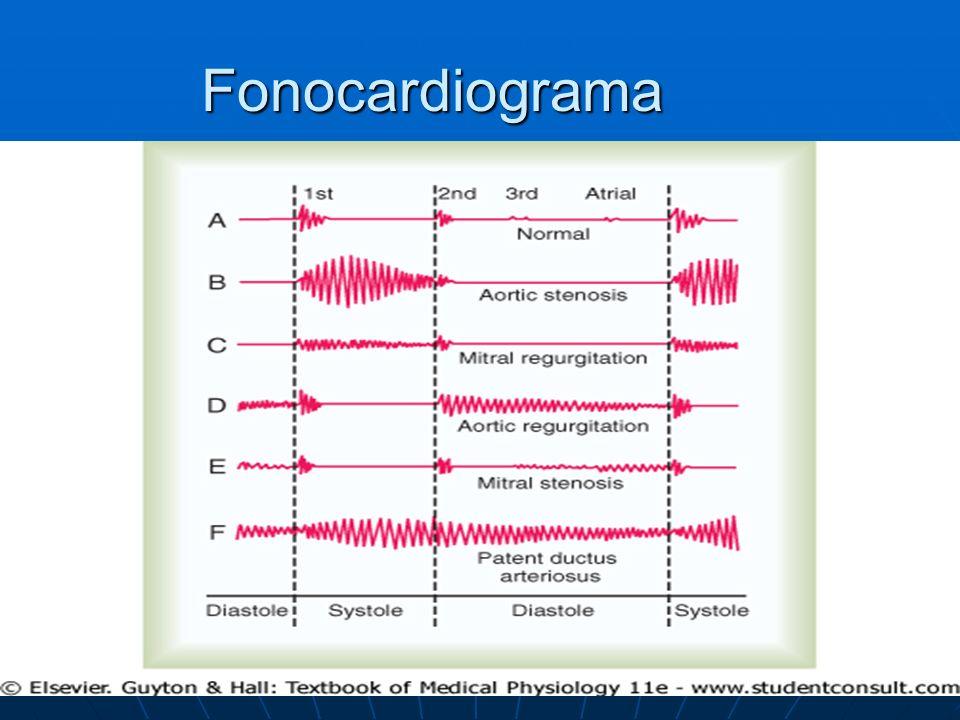 Fonocardiograma