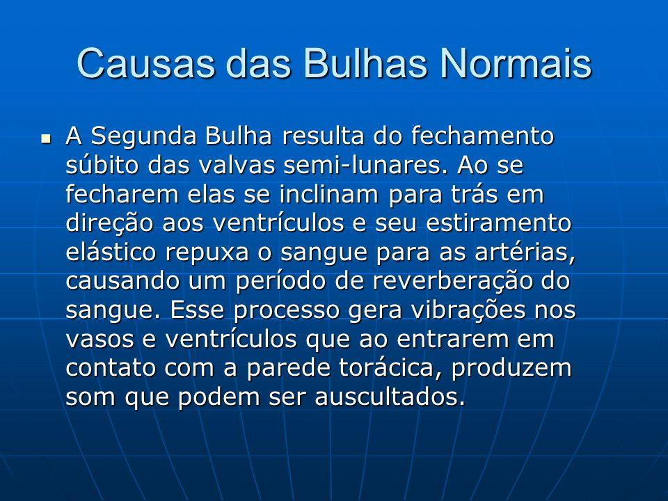 Causas das Bulhas Normais A Segunda Bulha resulta do fechamento súbito das valvas semi-lunares.