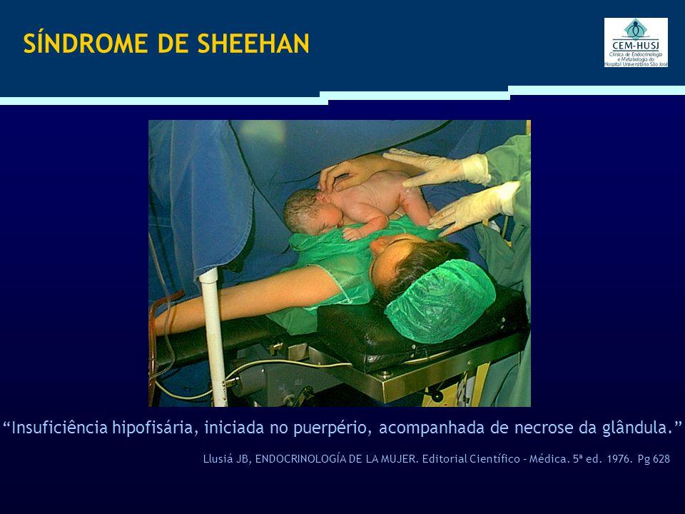 SÍNDROME DE SHEEHAN Insuficiência hipofisária, iniciada no puerpério, acompanhada de necrose da glândula. Llusiá JB, ENDOCRINOLOGÍA DE LA MUJER. Edito