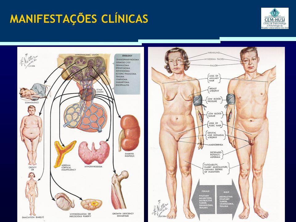 DEFICIÊNCIA DE GH Fraqueza Depressão Osteoporose Labilidade emocional Redução da massa magra Aumento da massa gorda (tronco) Aumento LDL Aumento do RCV Hipoglicemia Vilar L., ENDOCRINOLOGÍA CLÍNICA.