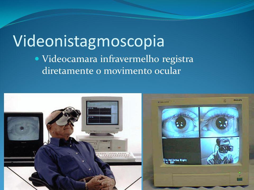 Videonistagmoscopia Videocamara infravermelho registra diretamente o movimento ocular