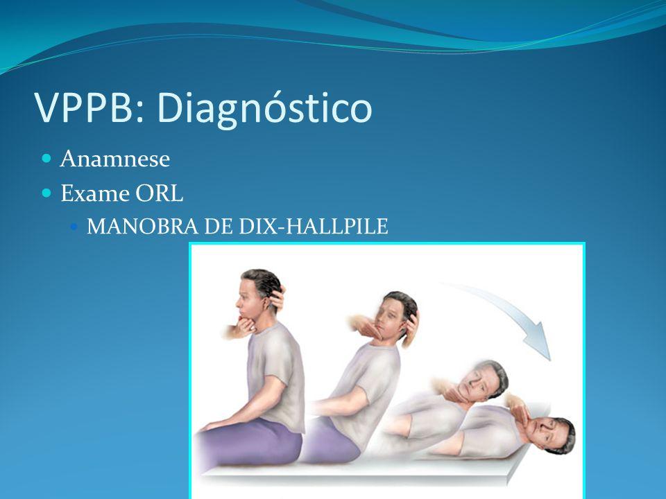 VPPB: Diagnóstico Anamnese Exame ORL MANOBRA DE DIX-HALLPILE