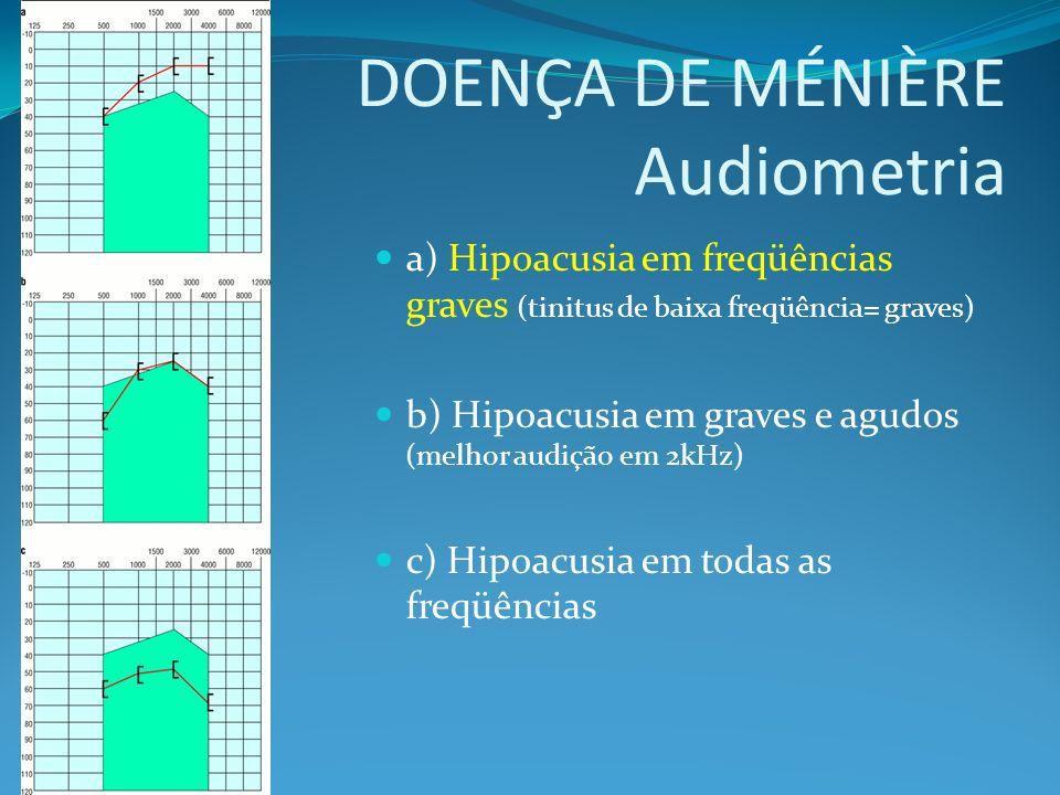 DOENÇA DE MÉNIÈRE Audiometria a) Hipoacusia em freqüências graves (tinitus de baixa freqüência= graves) b) Hipoacusia em graves e agudos (melhor audiç