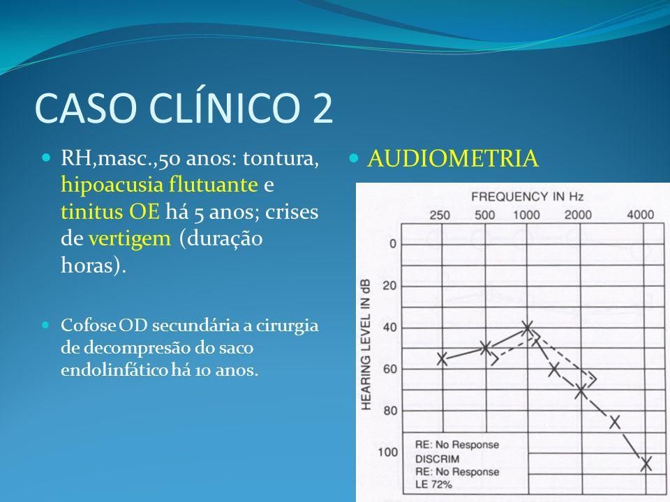CASO CLÍNICO 2 RH,masc.,50 anos: tontura, hipoacusia flutuante e tinitus OE há 5 anos; crises de vertigem (duração horas). Cofose OD secundária a ciru