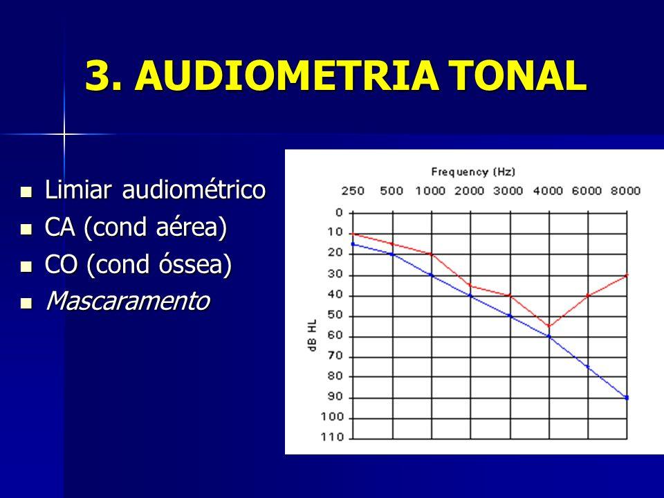 3. AUDIOMETRIA TONAL Limiar audiométrico Limiar audiométrico CA (cond aérea) CA (cond aérea) CO (cond óssea) CO (cond óssea) Mascaramento Mascaramento