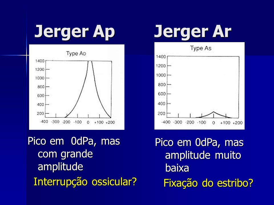 Jerger Ap Jerger Ar Pico em 0dPa, mas com grande amplitude Interrupção ossicular? Pico em 0dPa, mas amplitude muito baixa Fixação do estribo?