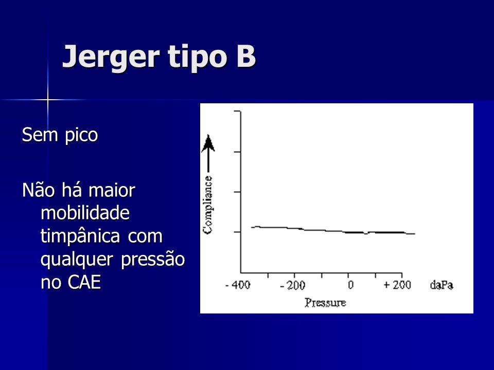 Jerger tipo B Sem pico Não há maior mobilidade timpânica com qualquer pressão no CAE