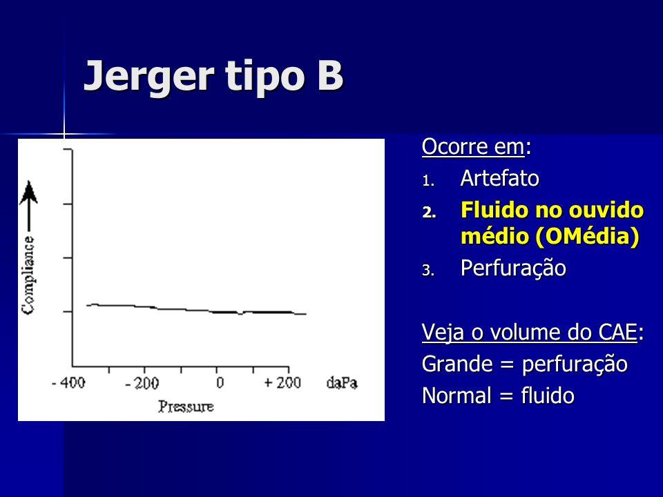 Jerger tipo B Ocorre em: 1. Artefato 2. Fluido no ouvido médio (OMédia) 3. Perfuração Veja o volume do CAE: Grande = perfuração Normal = fluido