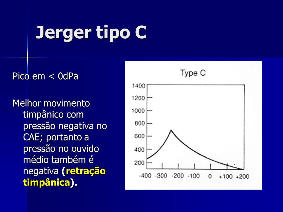 Jerger tipo C Pico em < 0dPa Melhor movimento timpânico com pressão negativa no CAE; portanto a pressão no ouvido médio também é negativa (retração ti