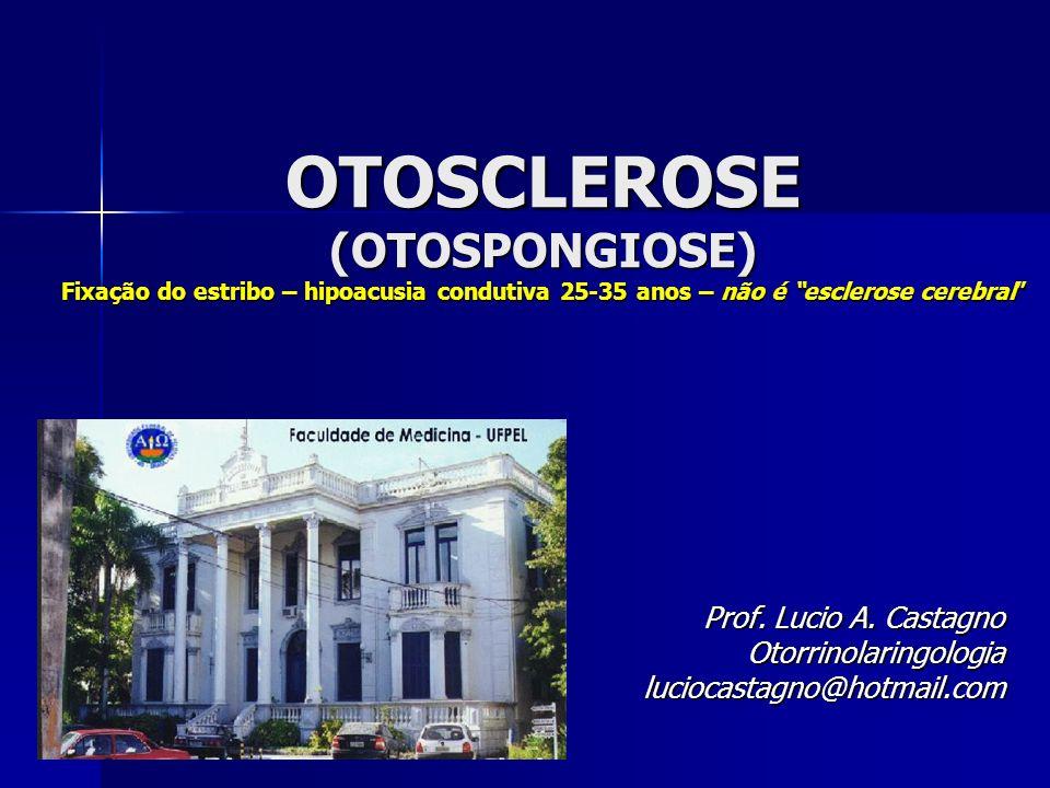 OTOSCLEROSE (OTOSPONGIOSE) Fixação do estribo – hipoacusia condutiva 25-35 anos – não é esclerose cerebral Prof. Lucio A. Castagno Otorrinolaringologi