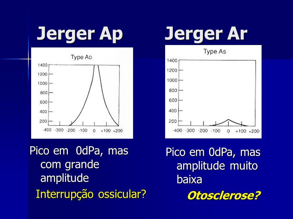 Jerger Ap Jerger Ar Pico em 0dPa, mas com grande amplitude Interrupção ossicular? Pico em 0dPa, mas amplitude muito baixa Otosclerose?