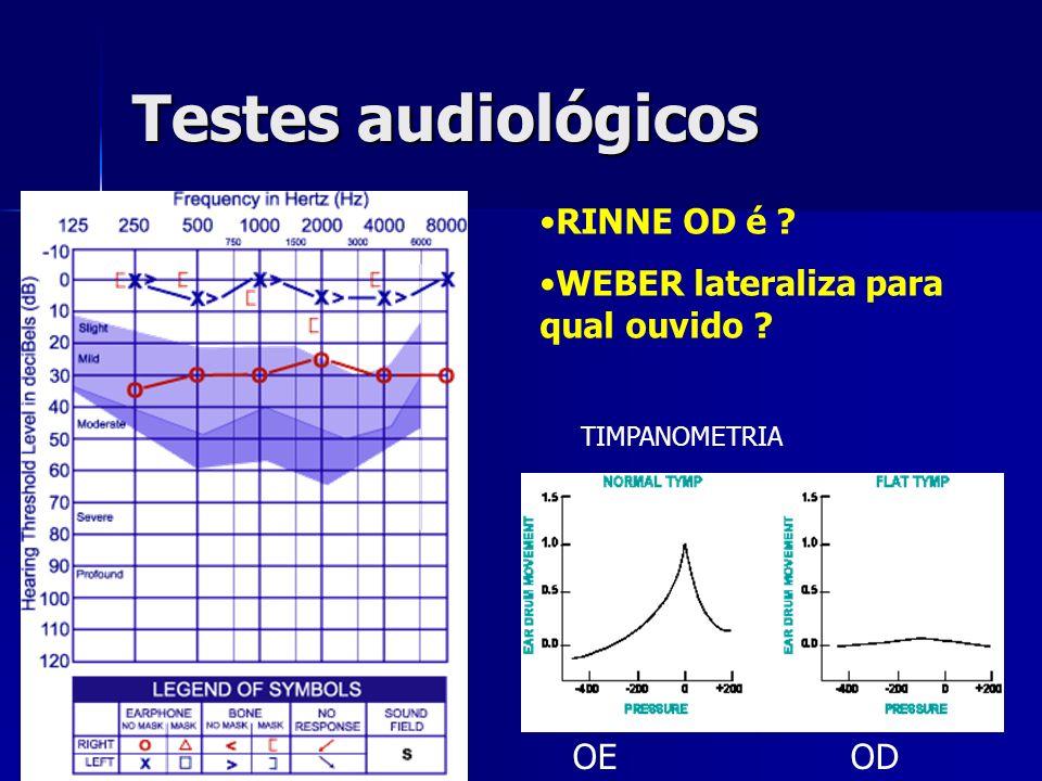 Testes audiológicos OE OD RINNE OD é ? WEBER lateraliza para qual ouvido ? TIMPANOMETRIA
