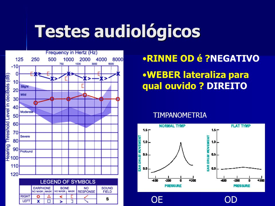 Testes audiológicos OE OD RINNE OD é ?NEGATIVO WEBER lateraliza para qual ouvido ? DIREITO TIMPANOMETRIA