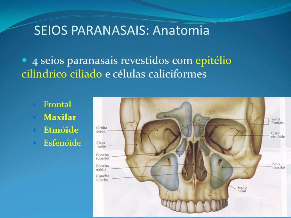 SEIOS PARANASAIS: Anatomia 4 seios paranasais revestidos com epitélio cilíndrico ciliado e células caliciformes Frontal Maxilar Etmóide Esfenóide