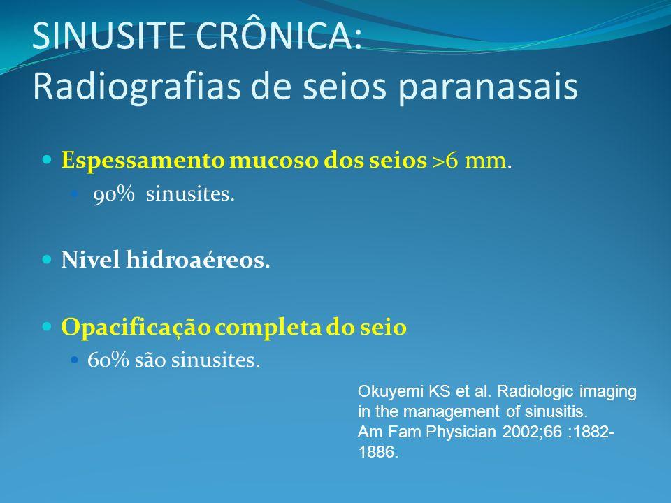 SINUSITE CRÔNICA: Radiografias de seios paranasais Espessamento mucoso dos seios >6 mm. 90% sinusites. Nivel hidroaéreos. Opacificação completa do sei