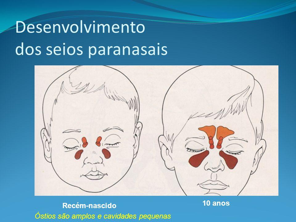 Desenvolvimento dos seios paranasais Recém-nascido 10 anos Óstios são amplos e cavidades pequenas