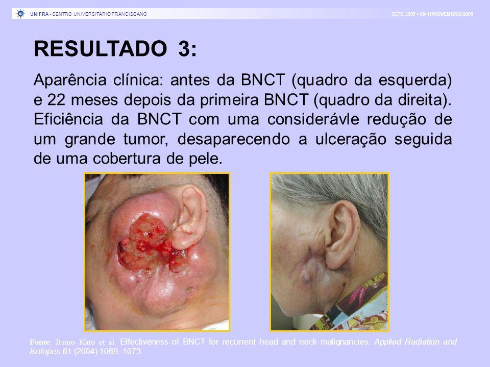 RESULTADO 3: Aparência clínica: antes da BNCT (quadro da esquerda) e 22 meses depois da primeira BNCT (quadro da direita). Eficiência da BNCT com uma