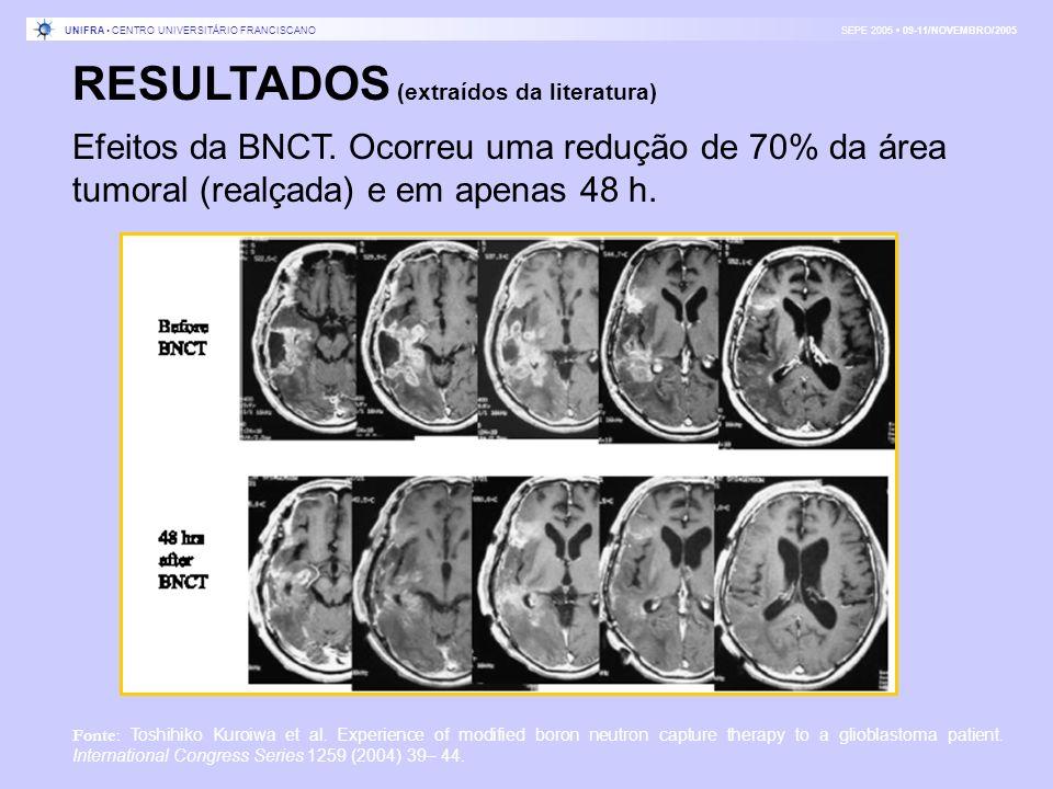 RESULTADOS (extraídos da literatura) Efeitos da BNCT. Ocorreu uma redução de 70% da área tumoral (realçada) e em apenas 48 h. Fonte: Toshihiko Kuroiwa