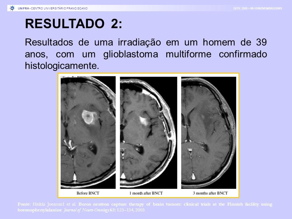 RESULTADO 2: Resultados de uma irradiação em um homem de 39 anos, com um glioblastoma multiforme confirmado histologicamente. Fonte: Heikki Joensuu1 e